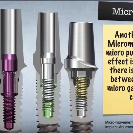 The Evolution of Implant Connections