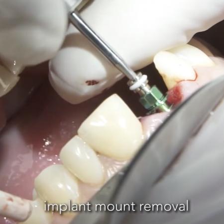 Immediate implantation and loading of 11.Treatment of late post trauma external resorption of 11.