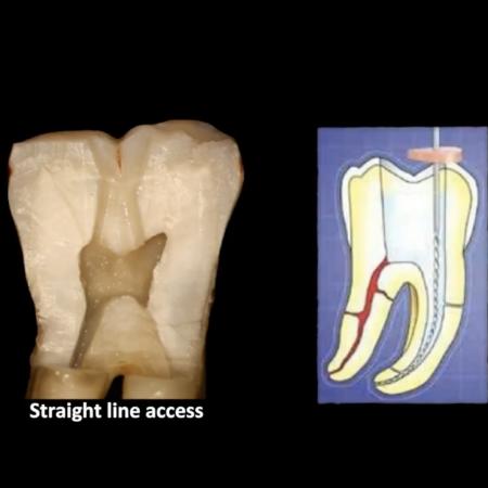 Modern Endodontics: Rethinking Access and Instrumentation
