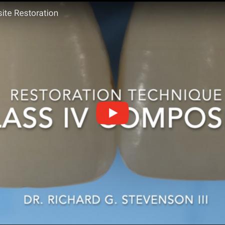 Class IV Composite Restoration