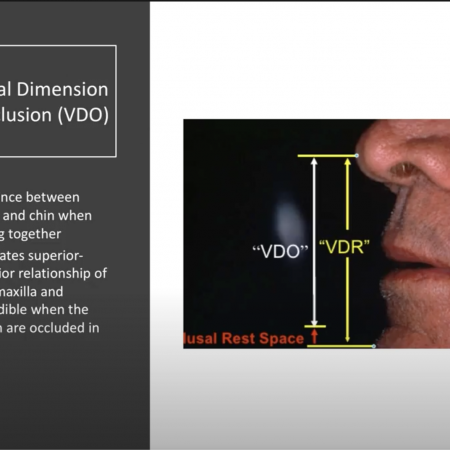 Complete Dentures – Vertical Dimension & Determinants of Occlusion