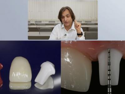 Principles of Guided Bone Regeneration