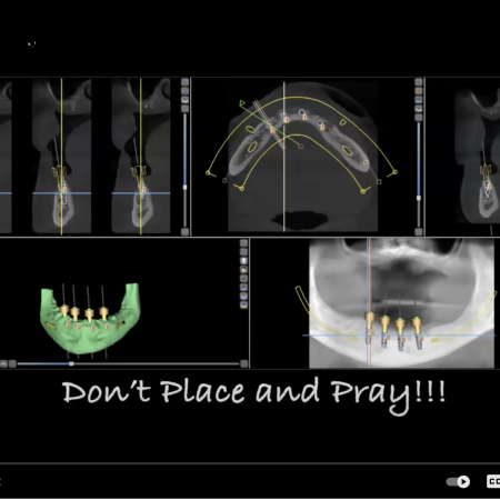 Prosthodontically driven tissue supported surgical guides for full arch all on X implants
